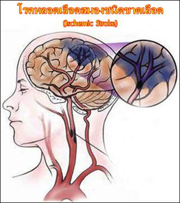 เล่าประสบการณ์ดูแลผู้ป่วยโรคเส้นเลือดสมองตัน